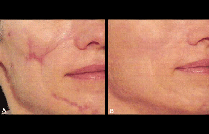 laser-treatment-scars-before-after.jpg