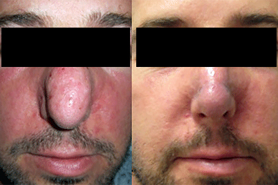 rosace-treatment-thick-skin-before-after.jpg