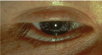 Alopecia areata of the eyelash